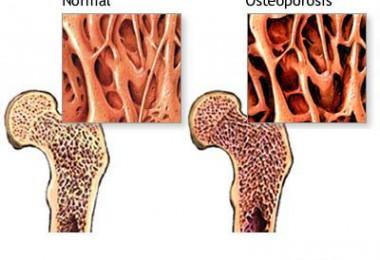 osteoporosis6