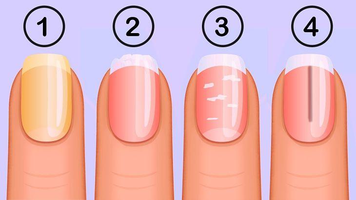 advertencias de salud que te dan las uñas