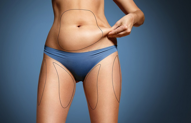 alimentos-que-causa-acumulacion-de-grasa-abdominal