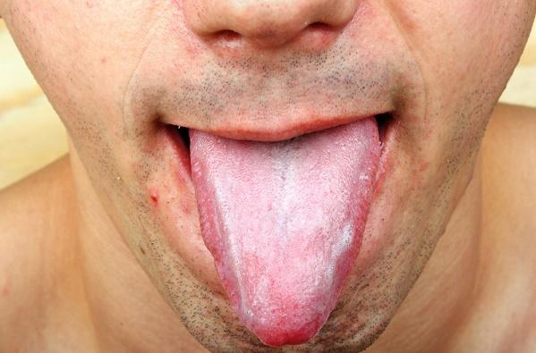 lengua cándida