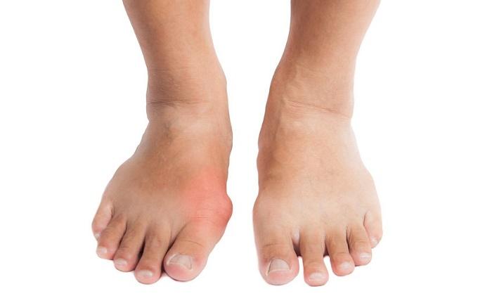 Presencias de altos niveles de ácido úrico causando la enfermedad de gota