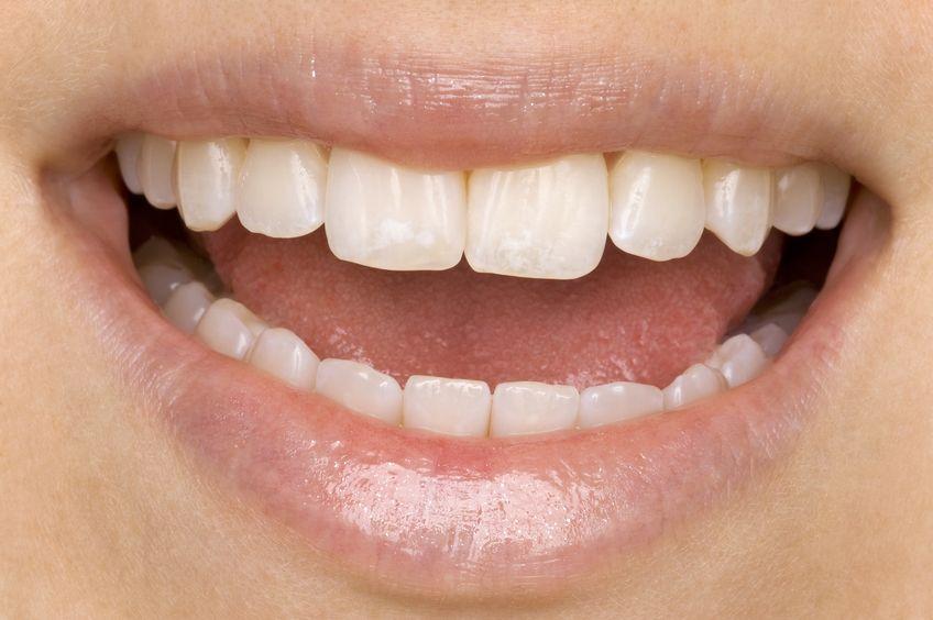 mal aliento boca saludable