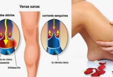 prevenir-las-varices