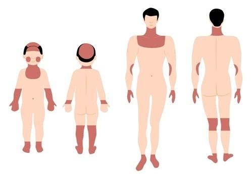 Aparieción de eccema en diferentes partes del cuerpo dependiendo de la edad