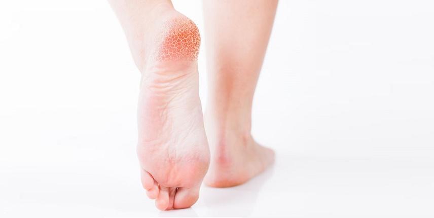 Comprar la medicina contra el hongo de las uñas en los pies en ukraine