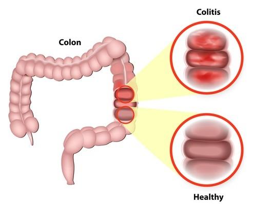 colon inflamado colitis