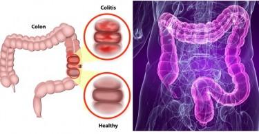 colon inflamado remedios caseros