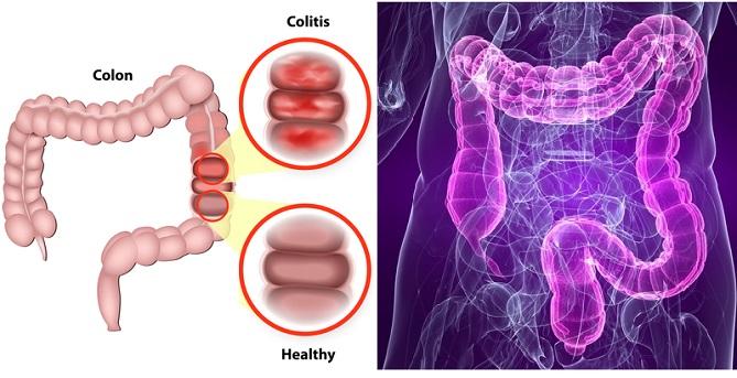 Remedios populares para colon inflamado