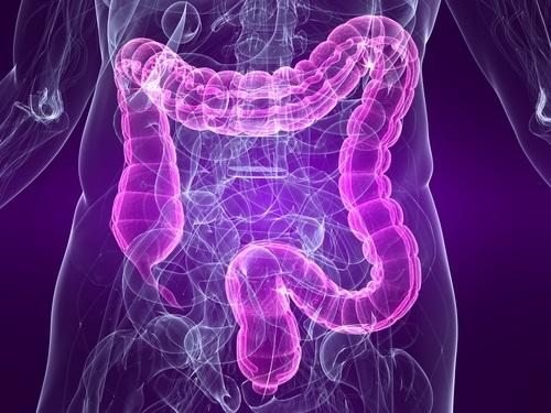 colon inflamado