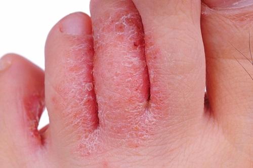 Así se ven los hongos en los pies cuando está en fase avanzada llegando a causar llagas