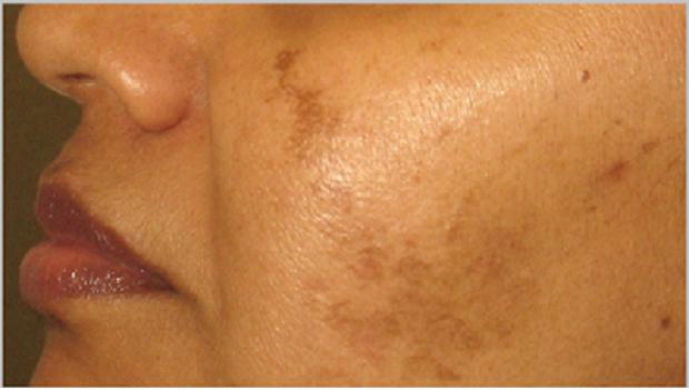 Remedios caseros para las manchas en la cara for Manchas en la pared