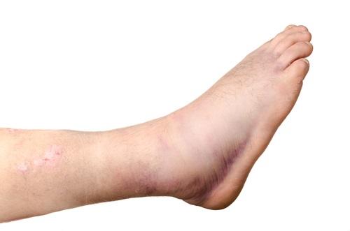 retención de líquidos en las piernas y tobillos
