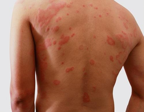 signos de la dermatitis atópica en adultos