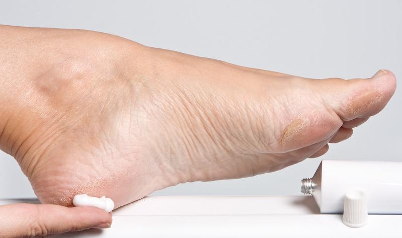 El hongo de los pie de los pies y las palmas