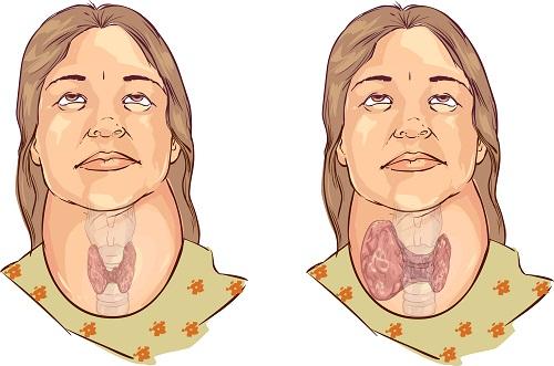tiroides 1