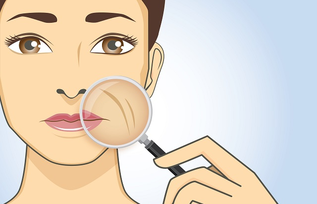 arrugas alrededor de la boca