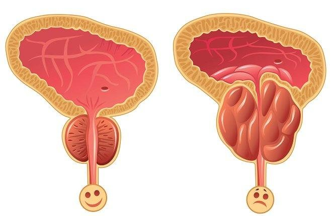 próstata agrandada ilustración