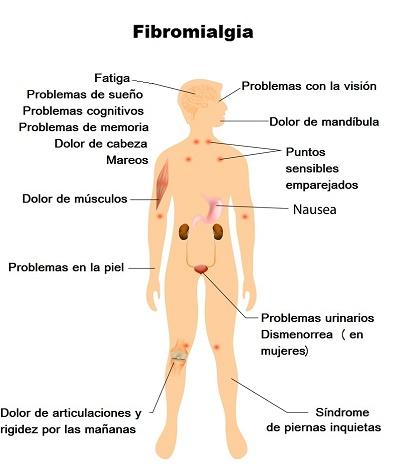 fibromialgia gráfico