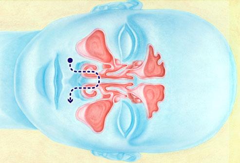 Irrigación nasal gráfico