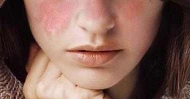 las señales del lupus en el rostro de una mujer