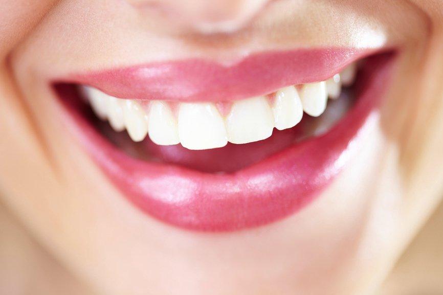 Mujer que muestra unos dientes blancos y saludables