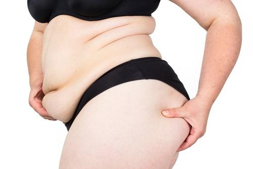 grasa en el cuerpo gorda
