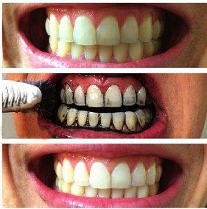 Gráfico mostrando los efectos del carbón activado sobre los dientes
