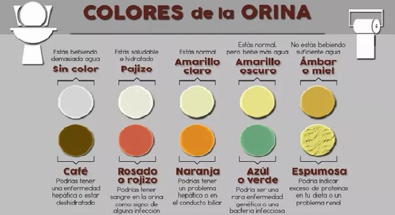 colores en la orina