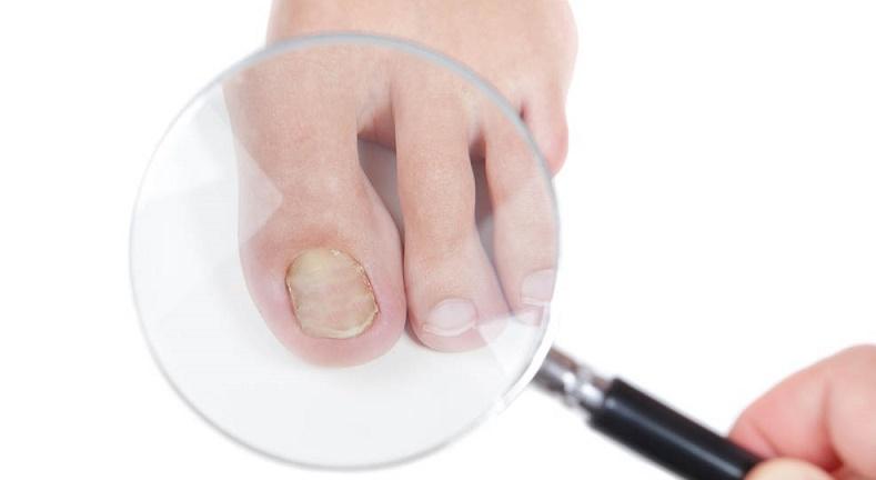 Causas y remedios para los hongos en las uñas - Vida Lúcida