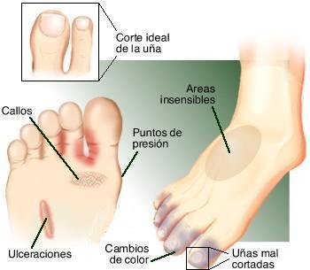 gráfico que describe tipos de hongos en las uñas y pies