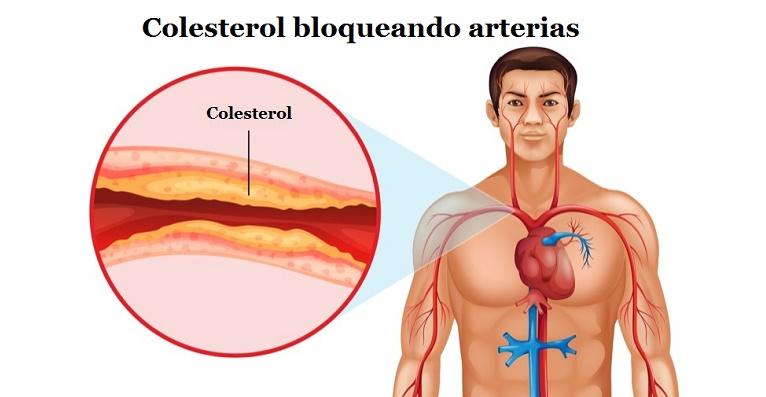 colesterol enfermedades crónicas corazón