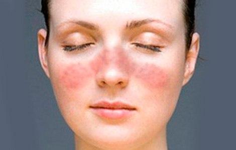 lupus enfermedad autoinmune