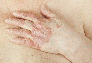 psoriasis enfermedades autoinmunes