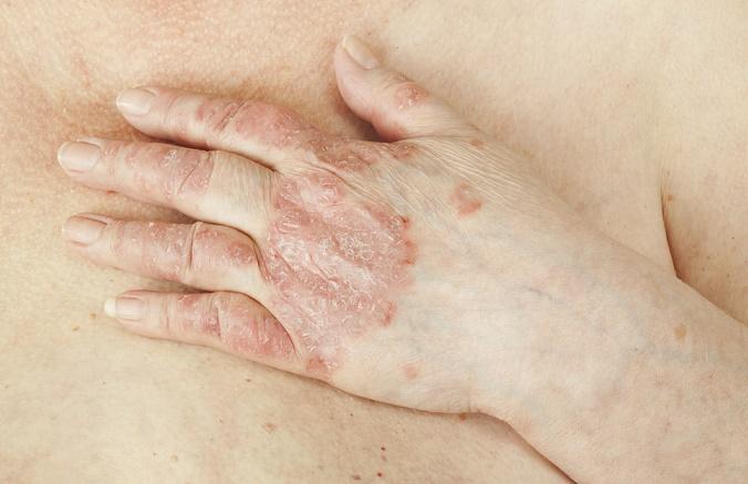Signos de una enfermedad autoinmune psoriasis
