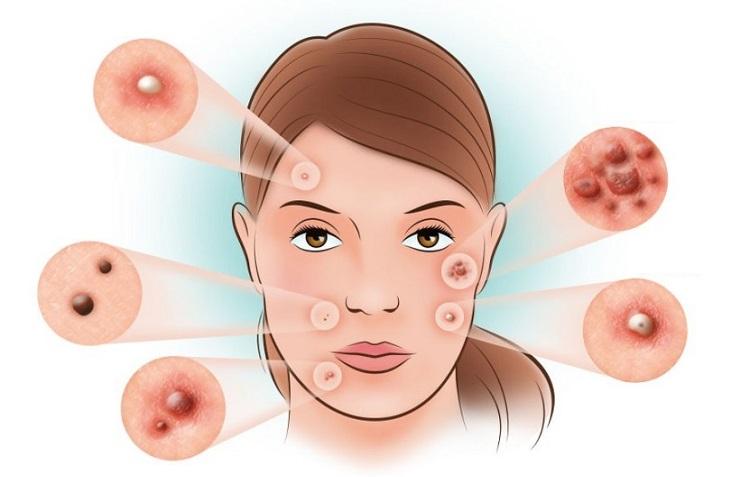 Los granos y las anguillas sobre la persona de la causa el tratamiento