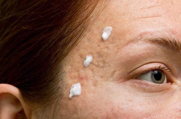 crema para acné