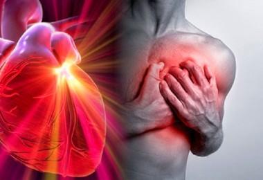 infarto.edicion2_0