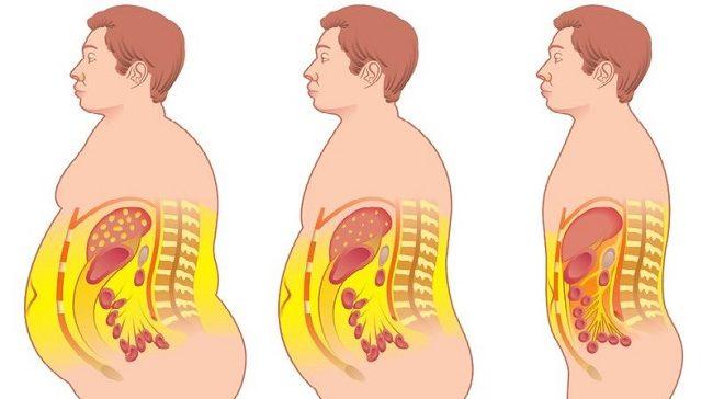 para eliminar la grasa del cuerpo