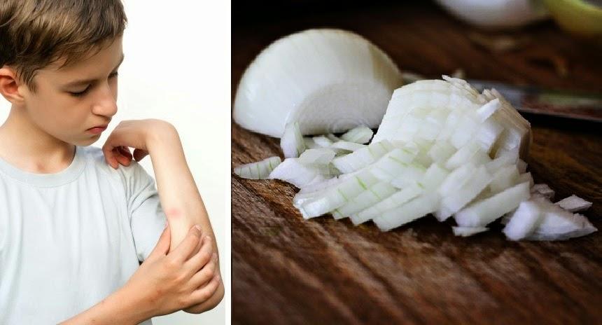 10 usos alternativos de la cebolla