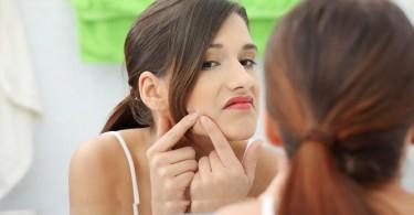 Las hormonas causan el acné de adulto