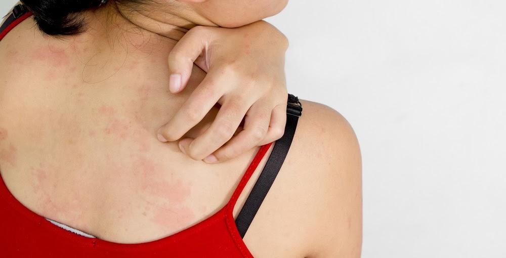 5 Tips para curar Psoriasis y Eczema
