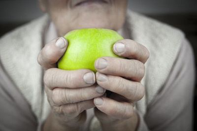 Artritis reumatoide signos