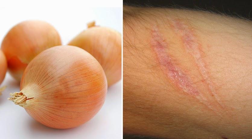 cebollas para tratar las cicatrices