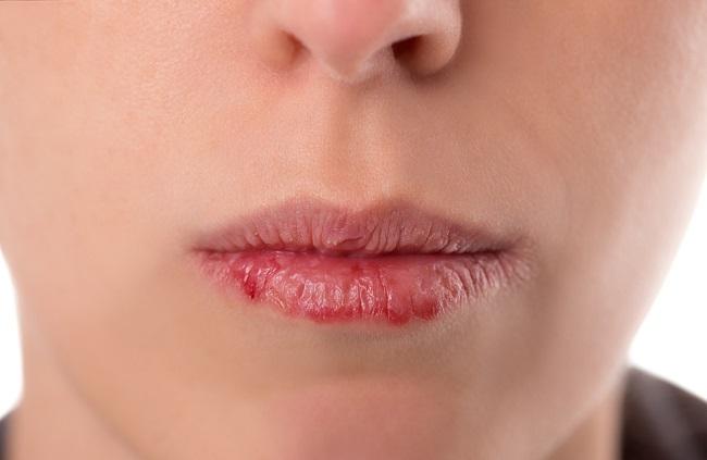 remedios para los labios secos