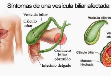 vesicula-2Bbiliar-2Bafectada
