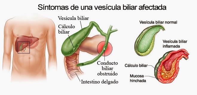 vesicular biliar afectada