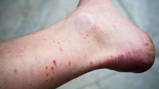 Aprende como tratar las picaduras de las pulgas