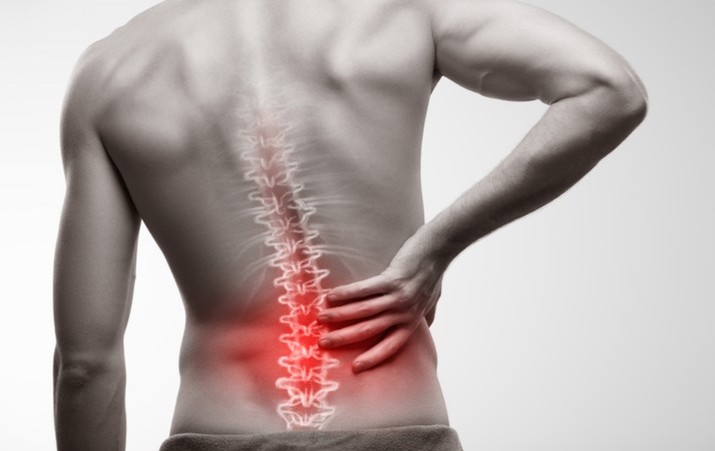 hernia discal y sus causas