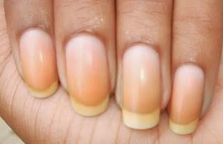 Uñas descoloridas