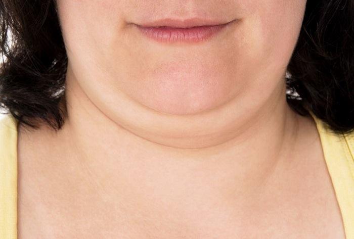 Ejercicios para la perder la papada sin liposucción